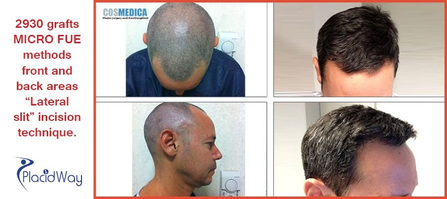 Hair Transplant Procedures Before and After Images in Istanbul, Turkey