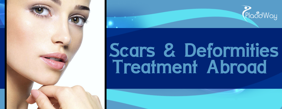 Scars and Deformities Treatment Abroad