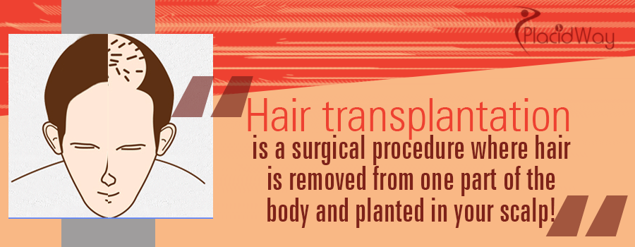 Hair Transplantation Procedure Abroad
