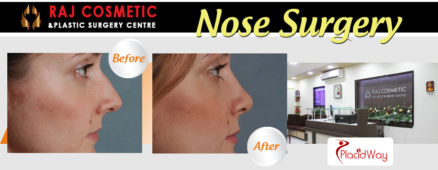Before and After Images Nose Surgery India