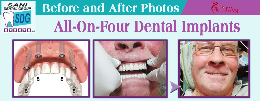Before and After All-on-Four Dental Implants in Los Algodones, Mexico