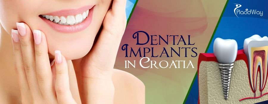 Dental Implants in Croatia