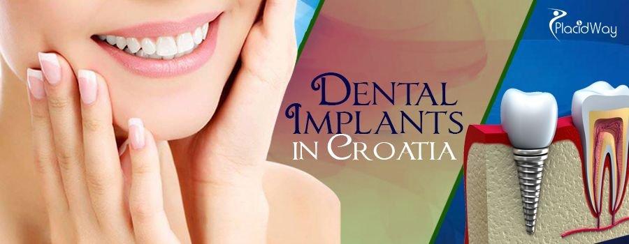 Dental Implants in Croatia
