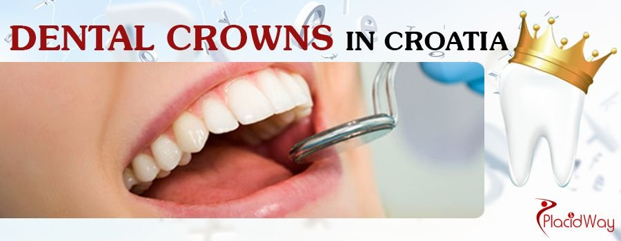 Dental Crowns Croatia