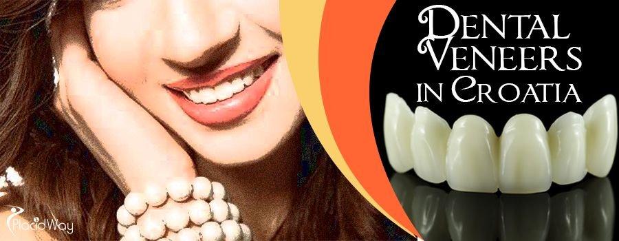 Dental Veneers in Croatia