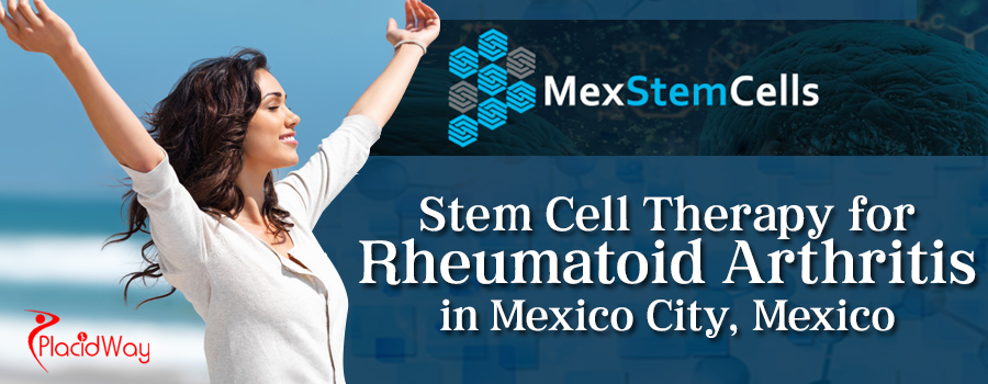 Stem Cell Therapy for Rheumatoid Arthritis in Mexico City Mexico