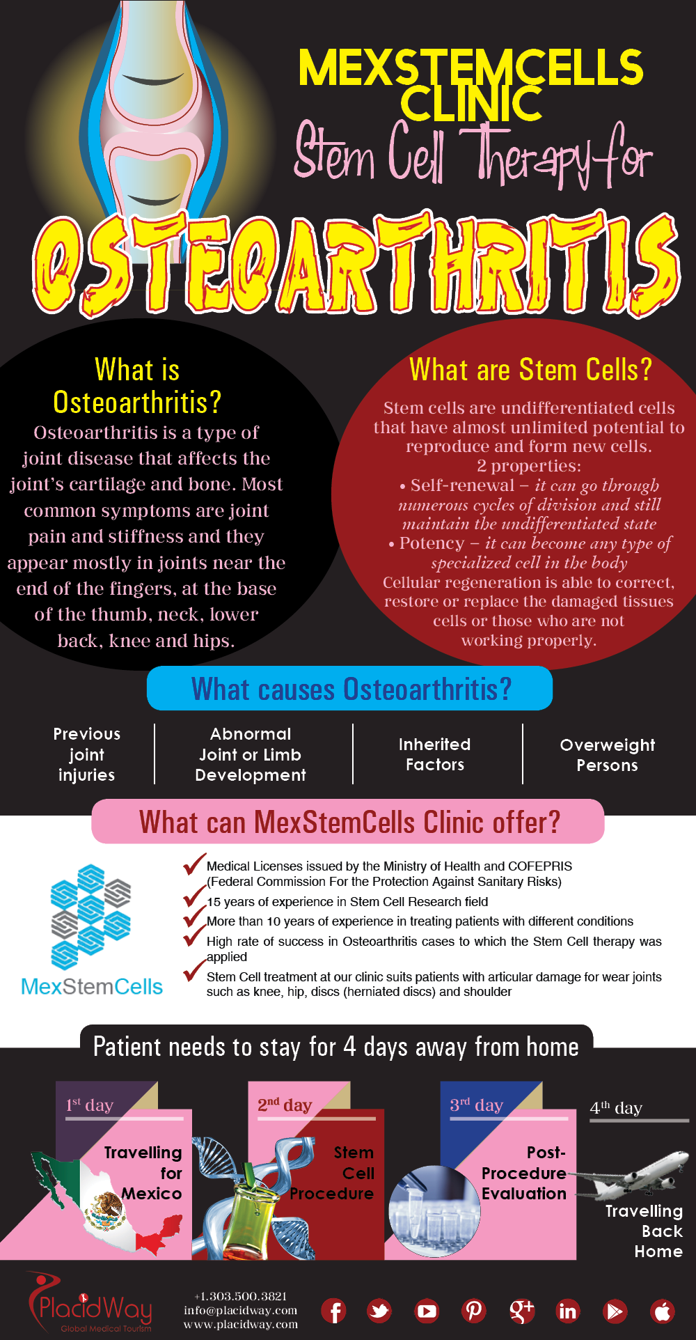 Infographics: MexStemCells Clinic Stem Cell Therapy for Orthopedic Diseases