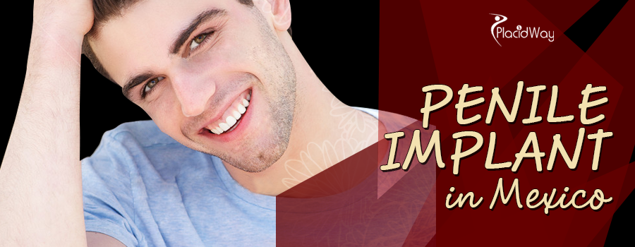 Penile Implant Package in Mexicali, Mexico