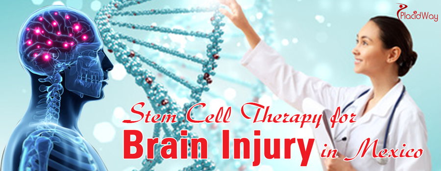 Stem Cell Therapy for Brain Injury in Mexico