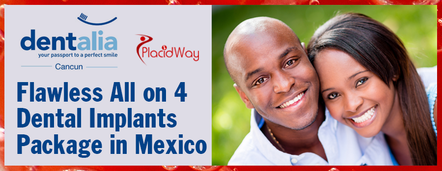 Flawless All on 4 Dental Implants Package in Mexico