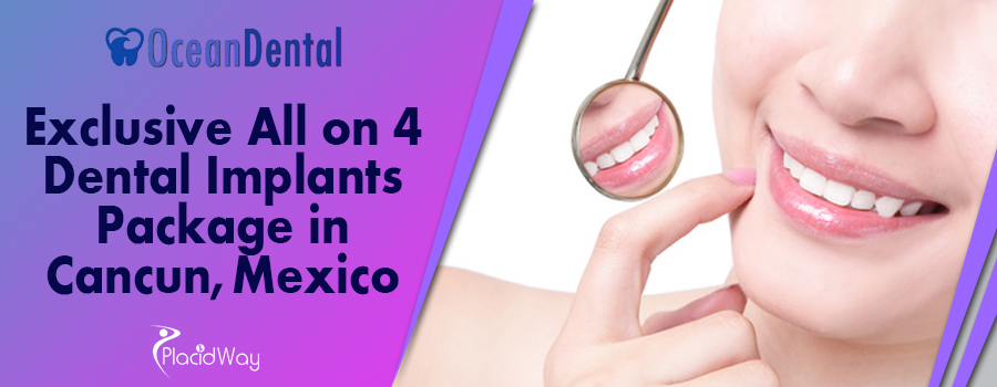 Exclusive All on 4 Dental Implants Package in Cancun Mexico