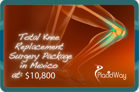 Total Knee Replacement Surgery Package Cost in Mexico