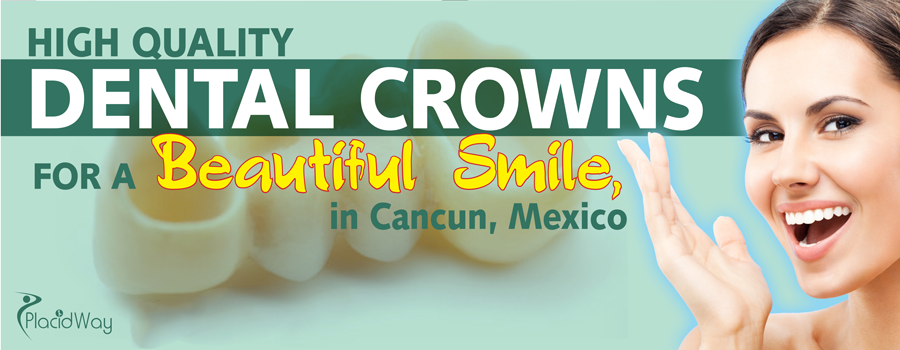 Dental Crowns in Cancun, Mexico
