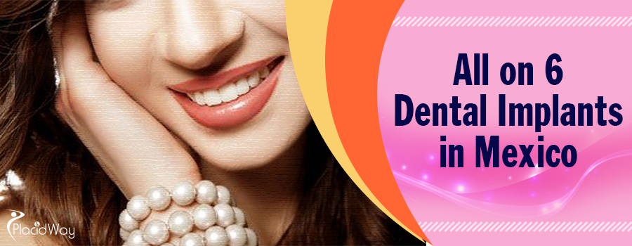 Best All on 6 Dental Implant Packages, Top Dentist in Mexico