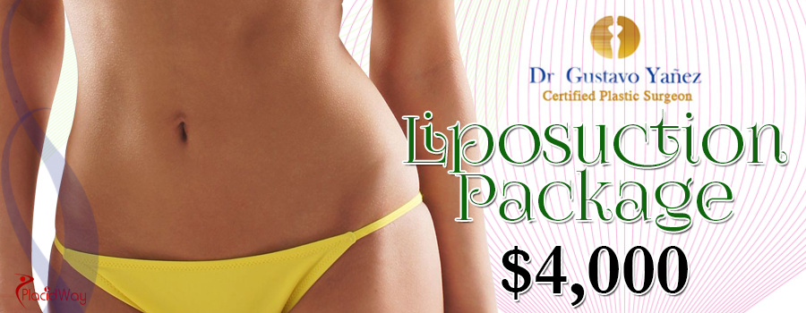 Cost of Liposuction Packages in Tijuana, Mexico