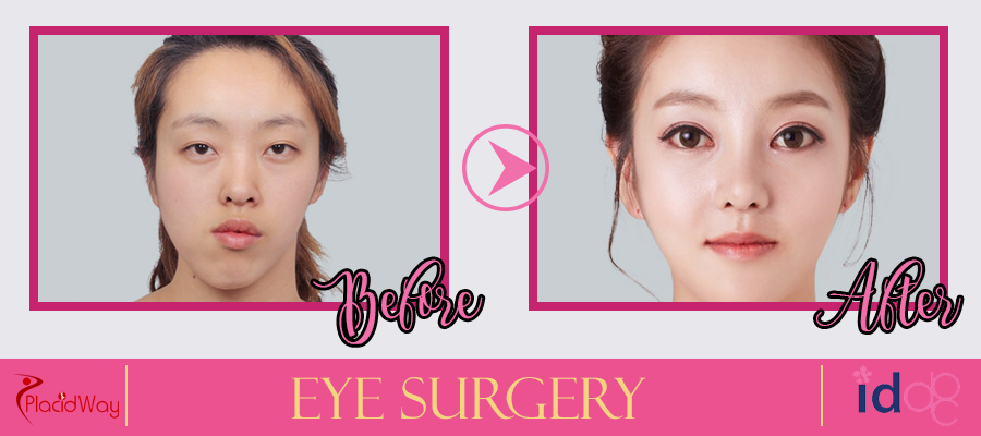 Eye Surgery Before and After South Korea