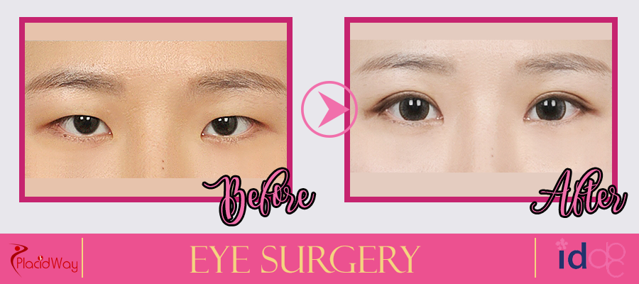 Patient Testimonial Eye Surgery in Seoul, South Korea