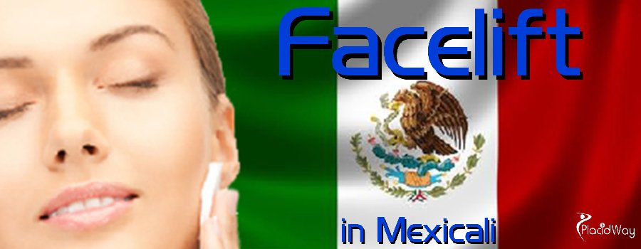 Face Lift in Mexicali, The cheapest face lift treatment in Mexico