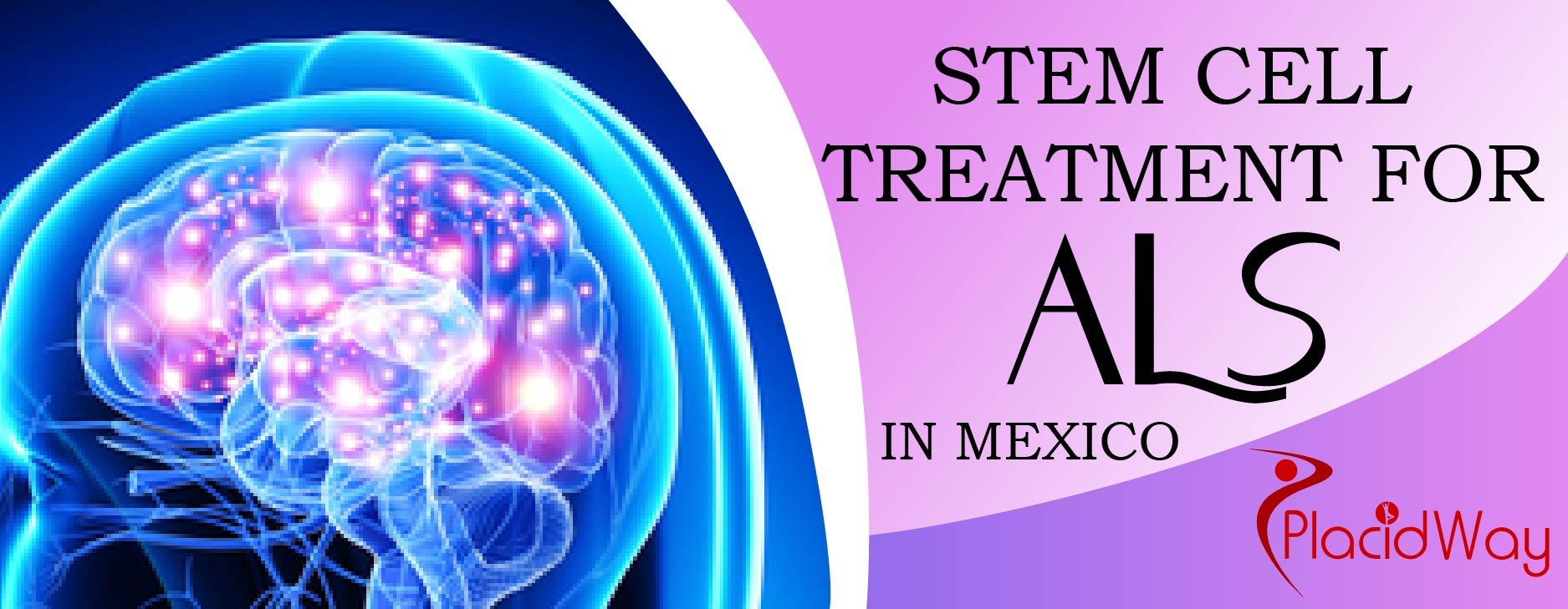 Stem Cell Therapy for ALS Package in Mexico