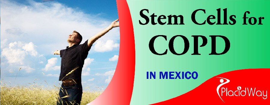 COPD Treatment in Mexico, Stem Cell Treatment for COPD
