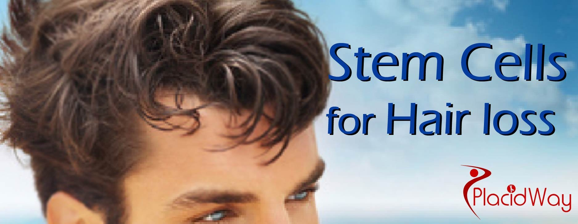 Hair Loss Treatment, Stem Cell Treatment for Hair Loss