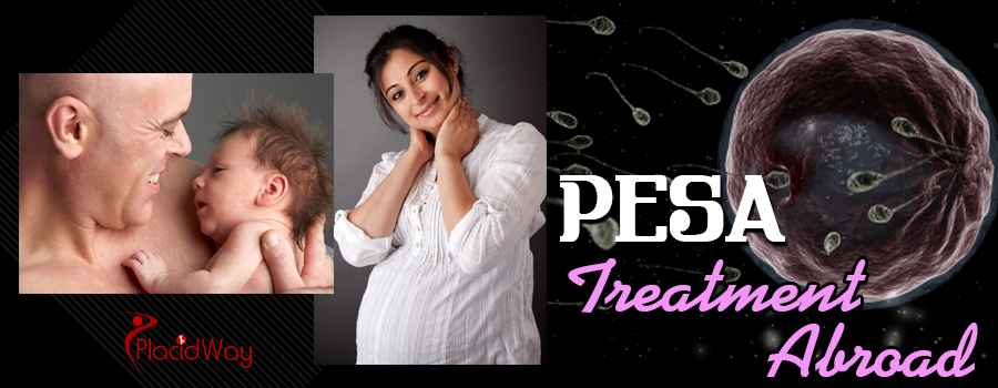PESA Fertility Technique Treatment Abroad