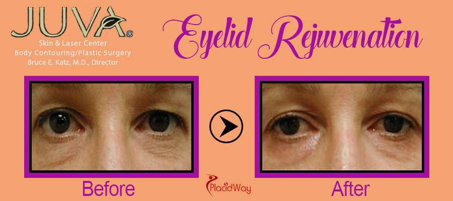 Before and After Eyelid Procedure New York
