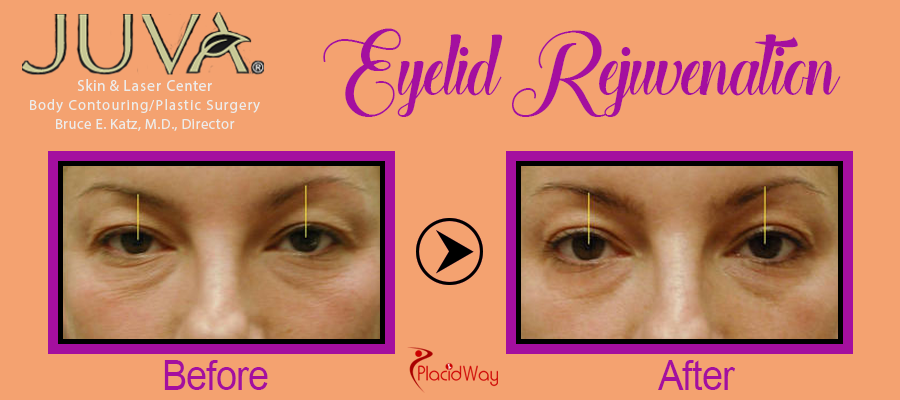Before After Eyelid Surgery New York USA