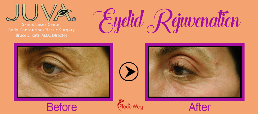 Picture Testimonial Eyelid Surgery New York