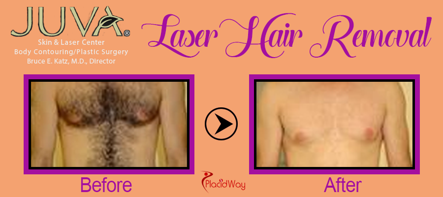Before and After Laser Hair Removal New York