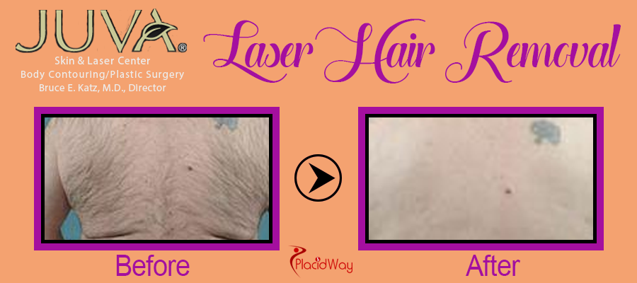 Before After Laser Hair Removal New York USA