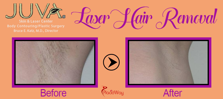 Picture Testimonial Laser Hair Removal New York