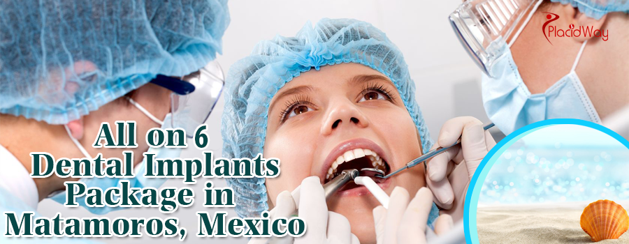 All on 6 Dental Implants in Matamoros, Mexico