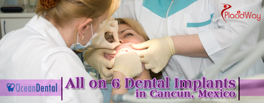 All on 6 Dental Implants Cancun Mexico