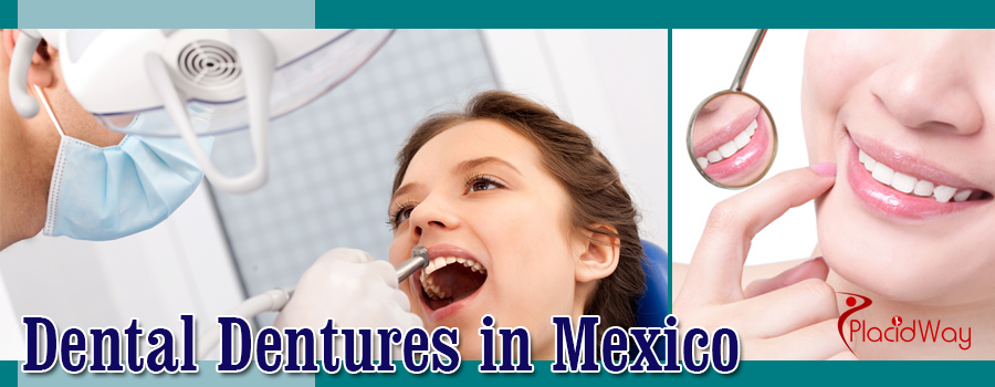 Top Denture Packages in Mexico