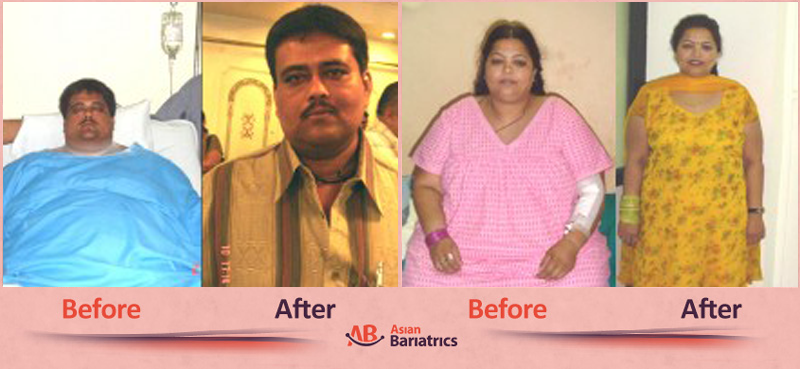Patient Testimonials Weight Loss Surgery in Ahmedabad, India