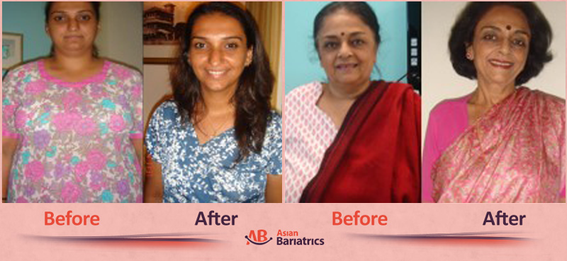 Patient Testimonials After Bariatric Surgery in Ahmedabad, India