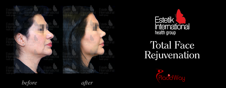 Before and After Facial Procedure Turkey