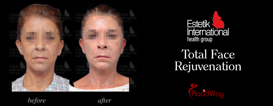 Before and After Facial Beautification in Istanbul, Turkey