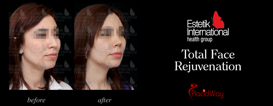 Picture Testimonial Facial Surgery Turkey