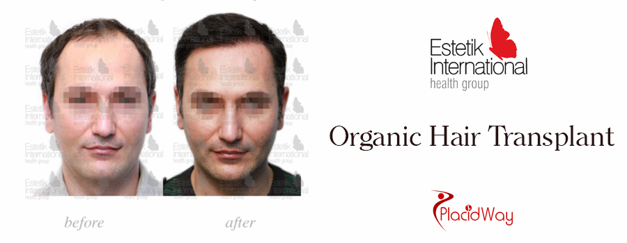 Before and After Organic Hair Transplantation in Turkey