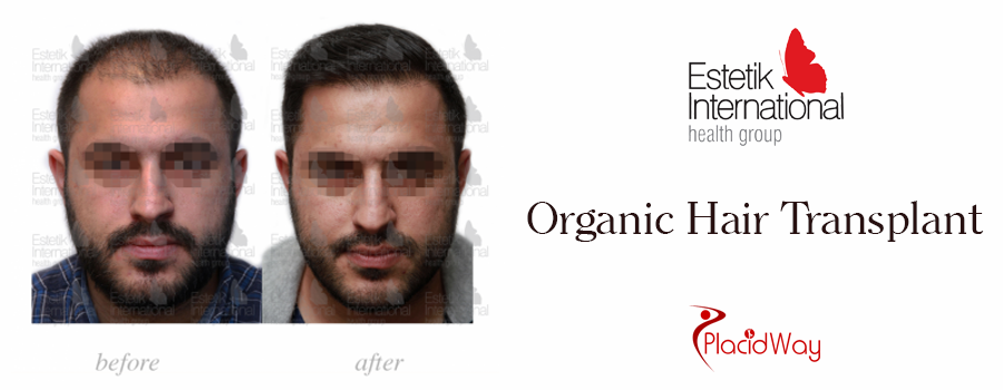 Before and After Hair Transplant in Istanbul, Turkey