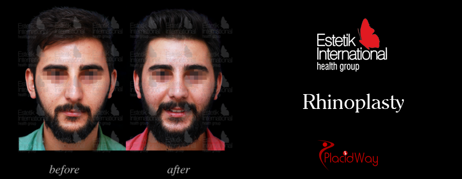 Picture Male Testimonial Nose Surgery Turkey