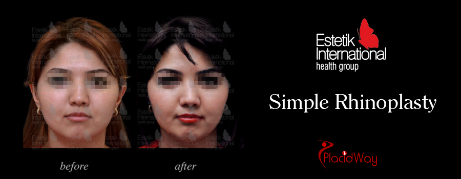 Before and After Simple Rhinoplasty Procedure in Turkey