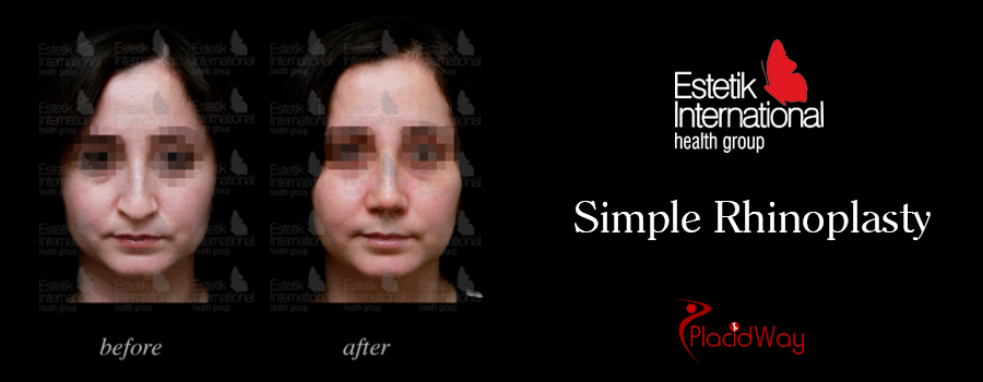 Before and After Simple Nose Job in Istanbul, Turkey