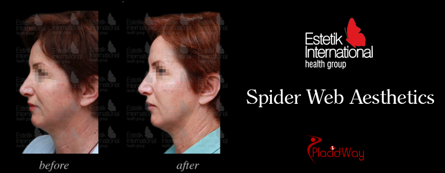 Before and After Spider Web Aesthetic Turkey
