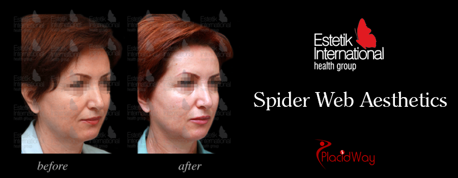 Before and After Spider Web Aesthetic in Istanbul, Turkey