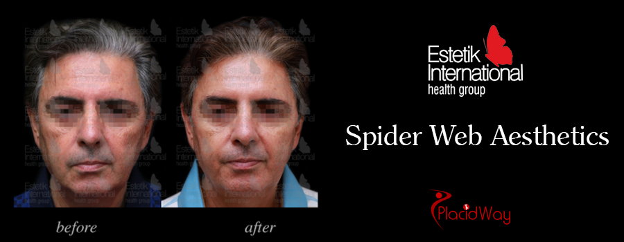 Picture Testimonial Spider Web Aesthetic Turkey