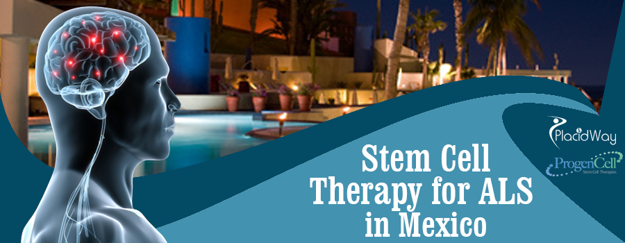 Stem Cell Therapy for ALS in Tijuana, Mexico
