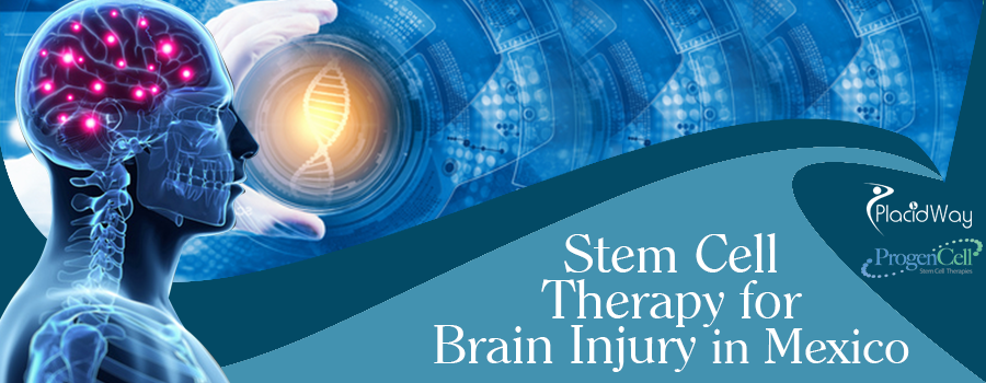 Stem Cell Therapy for Brain Injury